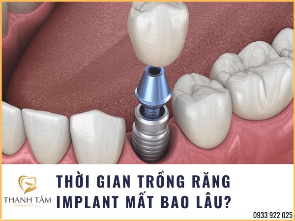Thời gian trồng răng Implant ở từng trường hợp không giống nhau