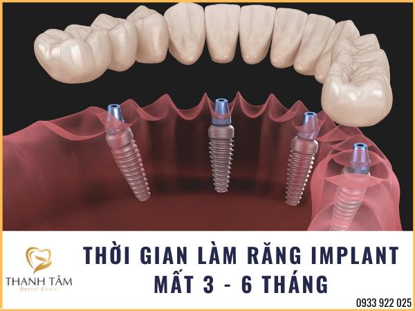 thời gian làm răng Implant