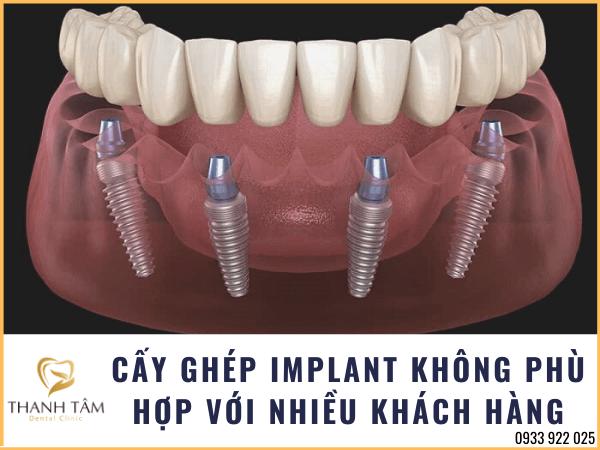 Nhiều trường hợp không nên làm răng Implant