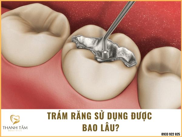 Trám răng sử dụng được bao lâu