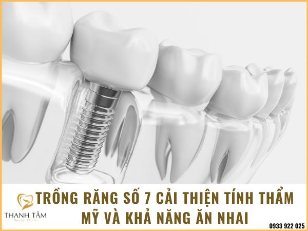 Trông răng số 7 để ngăn chặn những vấn đề xấu phát sinh