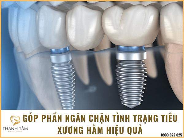 Ngăn chặn hiện tượng tiêu xương hàm
