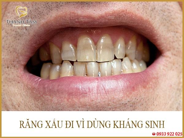 Tẩy trắng răng nhiễm kháng sinh