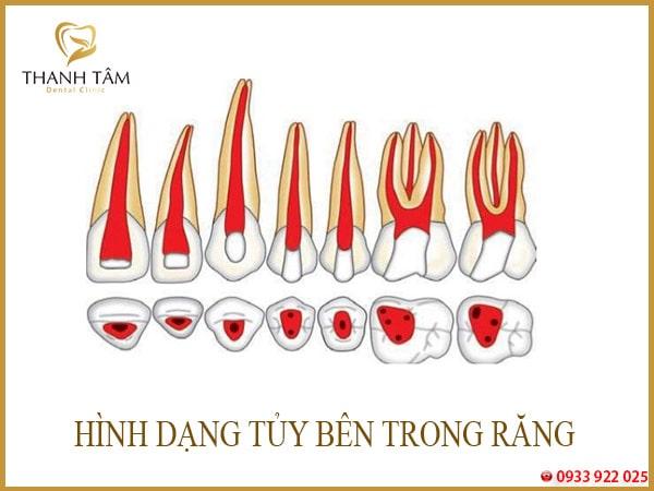 viêm tủy răng số 7