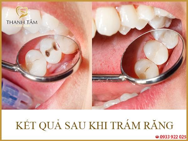Buốt răng hàm dưới
