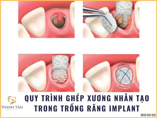 Quy trình cấy ghép xương hàm