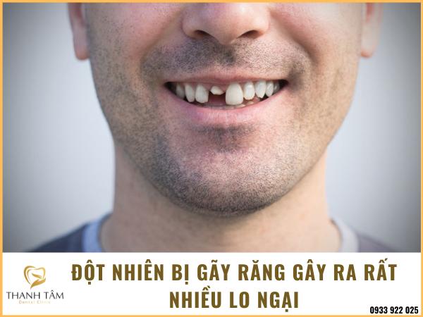 bị gãy răng có điềm gì