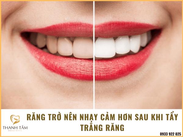 Răng sau khi tẩy trắng cũng trở nên nhạy cảm