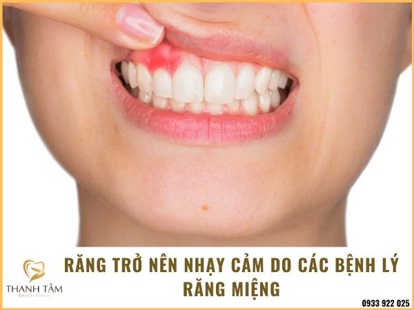 Răng nhạy cảm do các bệnh lý tồn tại