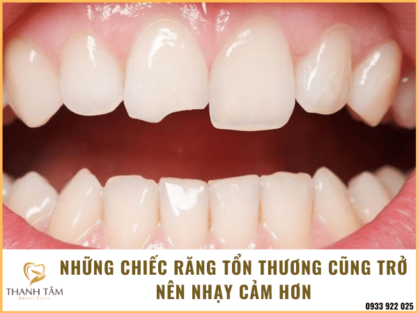 Răng nhạy cảm do các tổn thương trên răng