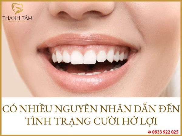 Cười hở lợi