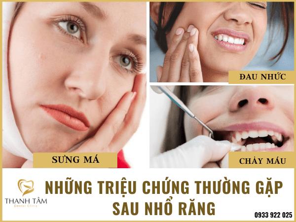 Những triệu chứng thường gặp sau nhổ răng