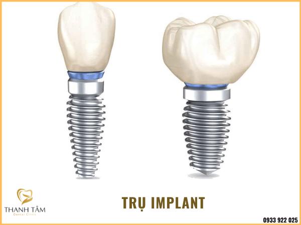 Trụ Implant
