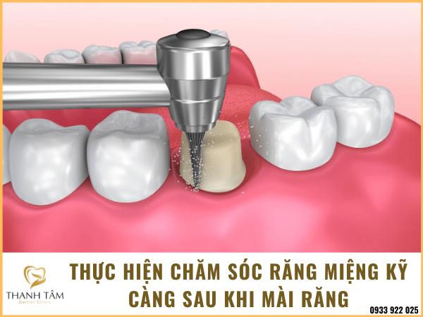 Lưu ý sau khi mài răng