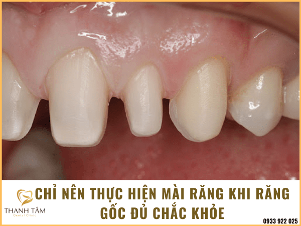 mài răng làm răng sứ