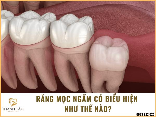 Răng khôn mọc ngầm