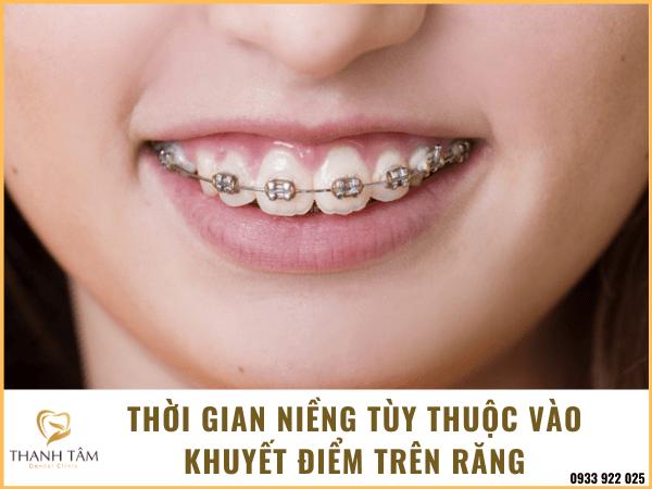 Niềng răng tốn bao nhiêu thời gian