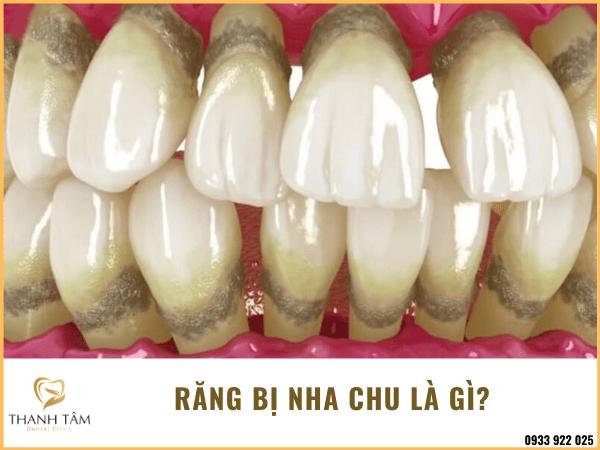 Răng bị nha chu