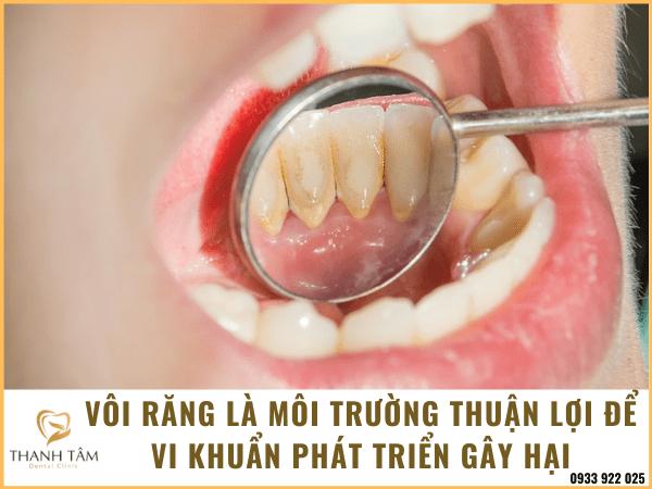 Viêm chân răng có mủ