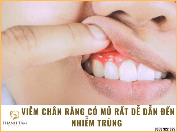 Tác hại của viêm chân răng có mủ