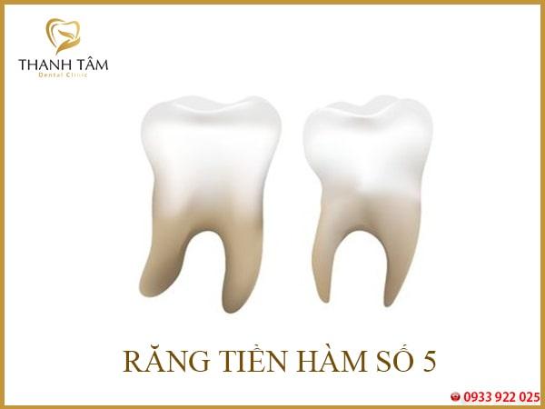 bé bị sâu răng số 5