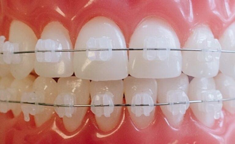 niềng răng mắc cài sứ chuẩn-min