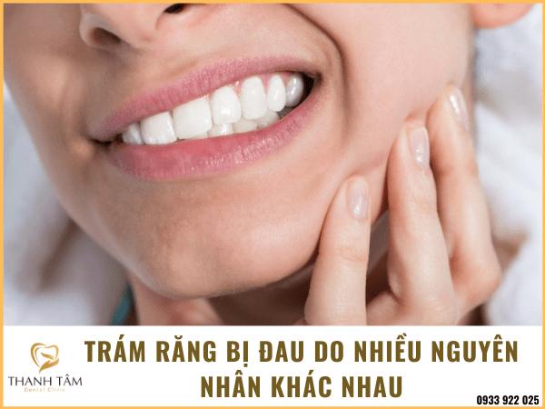 Trám răng sau bị đau tương đối dễ gặp