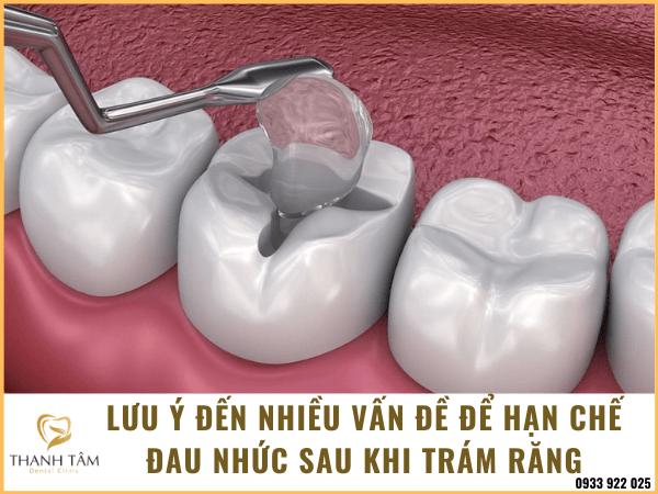 Sau khi trám răng nên lưu ý đến nhiều vấn đề