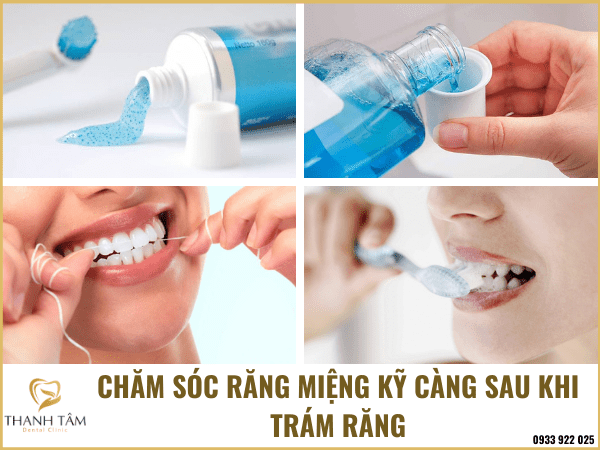 Chăm sóc răng miệng