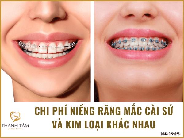 Chi phí niềng răng khác biệt