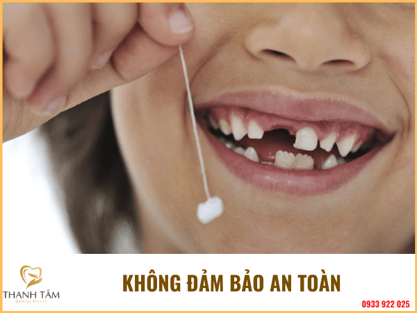Cách nhổ răng sữa