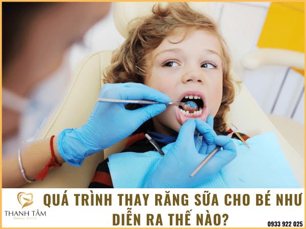 Quá trình thay răng