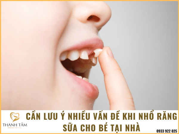 Cách nhổ răng sữa cho trẻ em