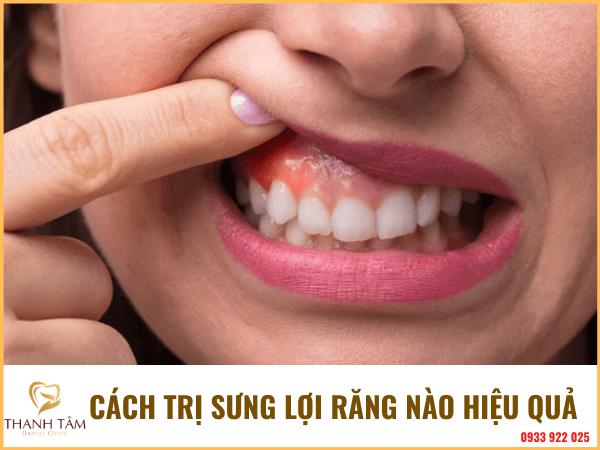sưng lợi răng