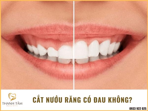 Cắt nướu răng có đau không?