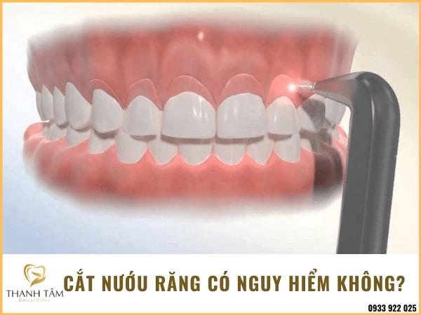 Cắt nướu răng có nguy hiểm không?