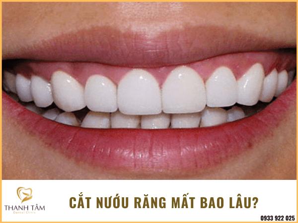 Cắt nướu răng bao lâu?