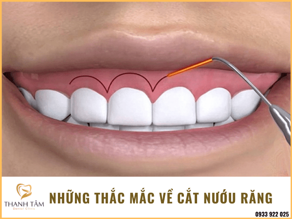 Cắt nướu răng