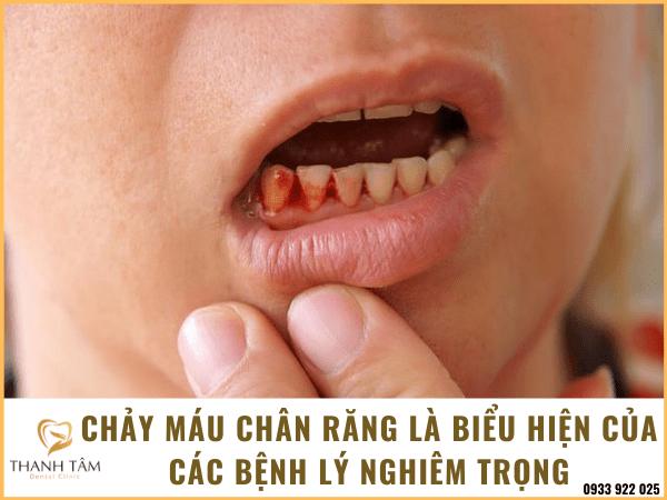 Đánh răng bị chảy máu chân răng