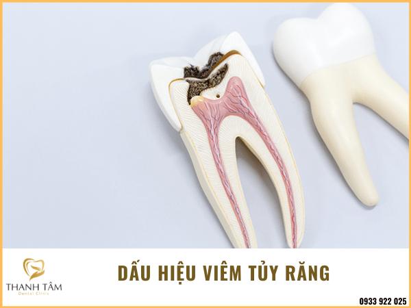 Dấu hiệu viêm tủy răng