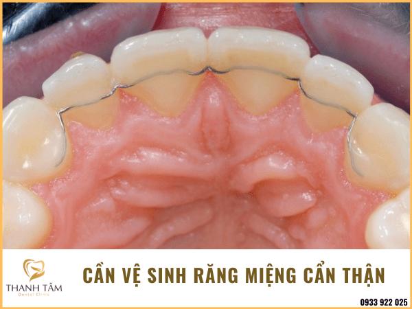 Vệ sinh răng miệng cẩn thận