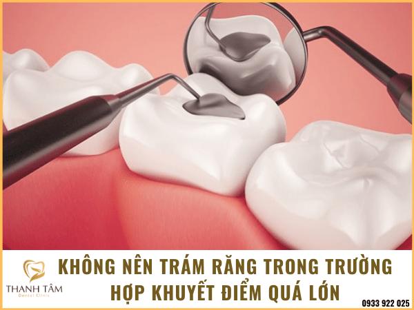Khi nào cần trám răng