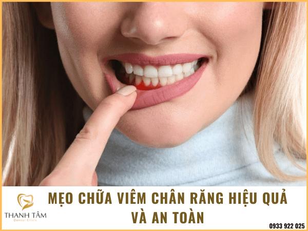 Mẹo chữa viêm chân răng