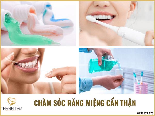 Chăm sóc răng miệng kỹ càng