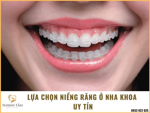 Niềng răng tại nha khoa uy tín