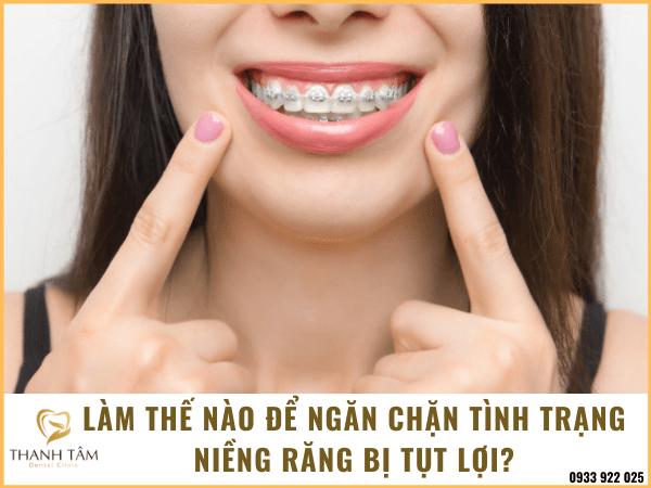 Cách ngăn chặn niềng răng bị tụt lợi