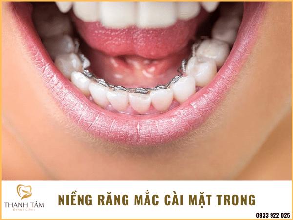 Niềng răng mắc cài mặt lưỡi