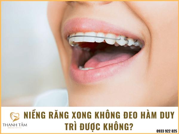 Niềng răng xong không đeo hàm duy trì