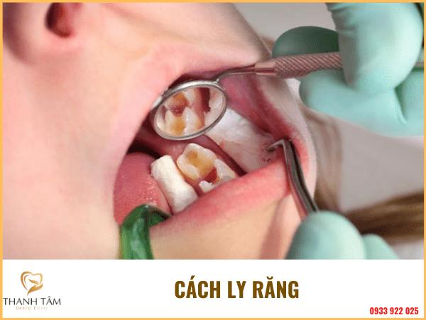 Quá trình lấy tủy răng