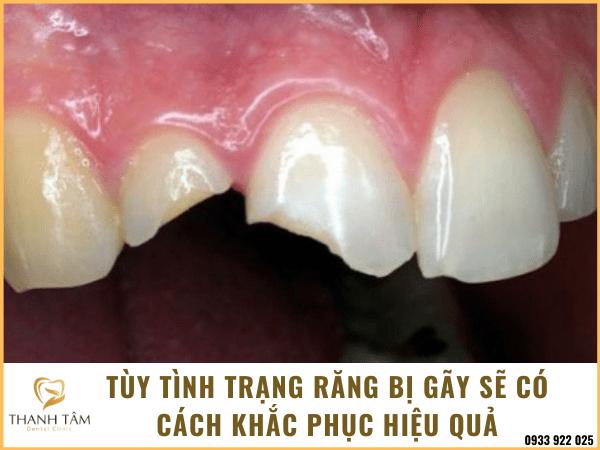 Răng bị gãy